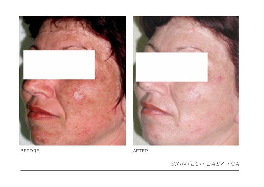 Slide17, Laser & Skincare Somerset Surgery | Plastic Surgery Somerset West