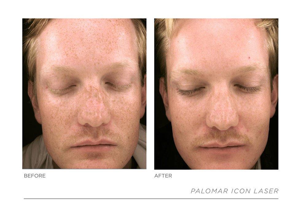Slide23, Laser & Skincare Somerset Surgery | Plastic Surgery Somerset West