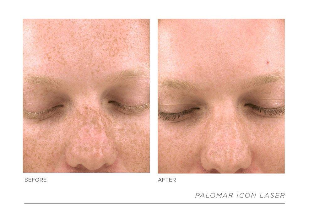 Slide24, Laser & Skincare Somerset Surgery | Plastic Surgery Somerset West