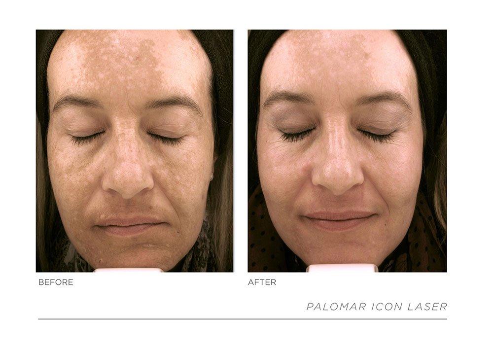 Slide25, Laser & Skincare Somerset Surgery | Plastic Surgery Somerset West