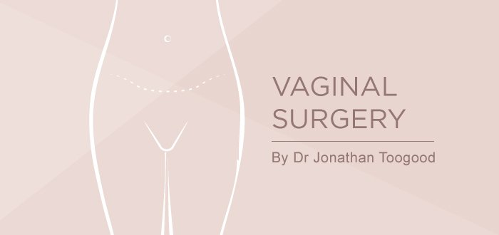 ss blog feb 01, Vaginal surgery Somerset Surgery | Plastic Surgery Somerset West