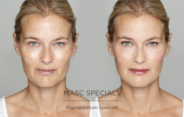 masc specials, MASC Pigmentation Specials Somerset Surgery | Plastic Surgery Somerset West