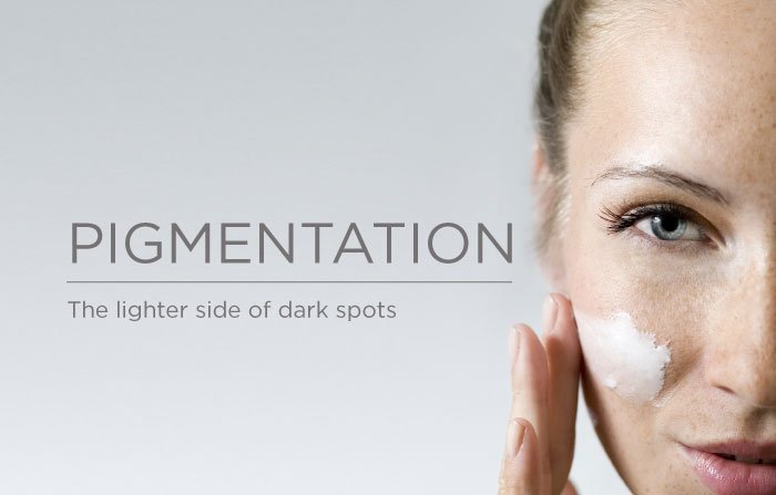 skin pigmentation2, Pigmentation Somerset Surgery | Plastic Surgery Somerset West