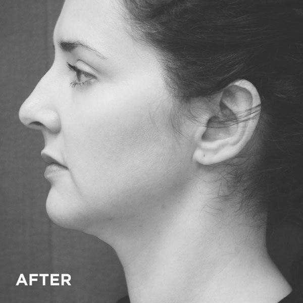 02763b17 4098 4317 9a9a e6a7d4d2e6b5, Introducing the SlimLipo treatment Somerset Surgery | Plastic Surgery Somerset West