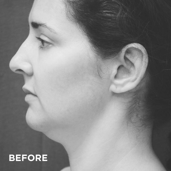 157ddc6c 30f7 46ca b316 6d96f40eefee, Introducing the SlimLipo treatment Somerset Surgery | Plastic Surgery Somerset West