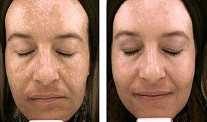 masc laser 1, Facial rejuvenation treatments at MASC Laser Clinic Somerset Surgery | Plastic Surgery Somerset West