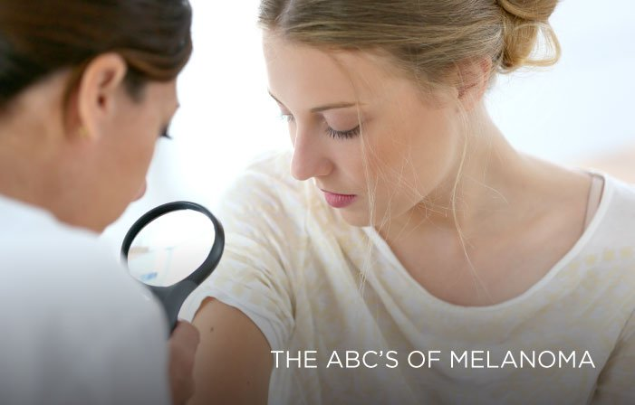 melanoma, The ABC's of melanoma Somerset Surgery | Plastic Surgery Somerset West
