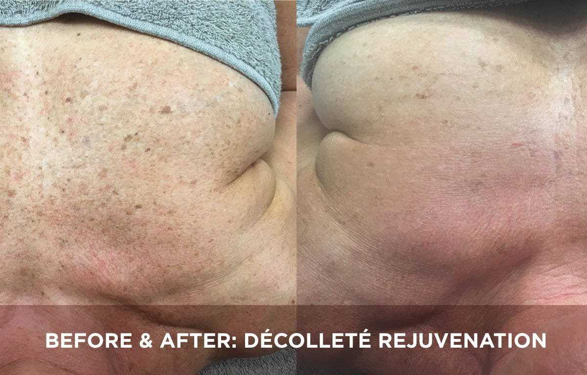 BEFORE AFTER DC9COLLETC9 REJUVENATION TREATMENT4331633560, Before & after: decolletage rejuvenation treatment Somerset Surgery | Plastic Surgery Somerset West