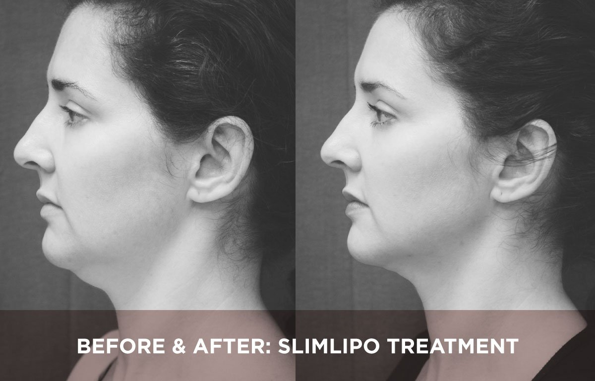 BEFORE AFTER SLIMLIPO TREATMENT7714882397, Introducing the SlimLipo treatment Somerset Surgery | Plastic Surgery Somerset West