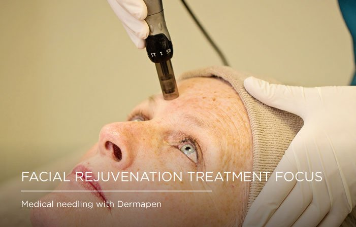 IMG4, Facial rejuvenation - treatment focus Somerset Surgery | Plastic Surgery Somerset West