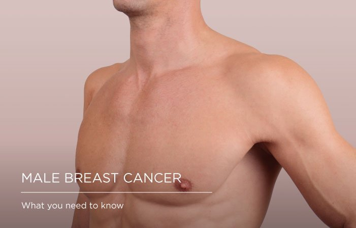male breast cancer somerset surgery 1, Male breast cancer: what you need to know Somerset Surgery | Plastic Surgery Somerset West